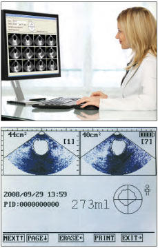 Medline BioCon 500 Ultrasound Bladder Scanner