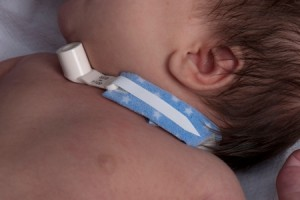 Tracheostomy Collar Tie by Dale