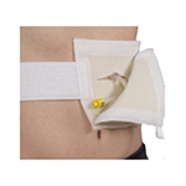 Management System for Enteral Feeding Tubes Tube-Pak