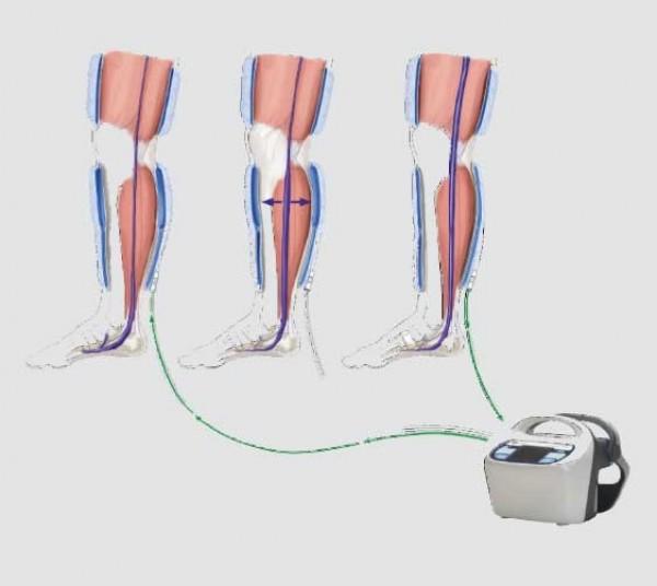 Leg Compression Therapy