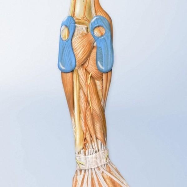 Bauerfeind EpiTrain Elbow Support