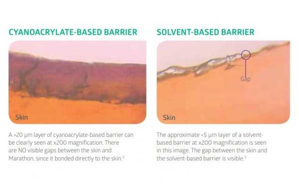 Skin Bonding Comparison Graphic